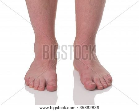 Mature Man Barefoot With Dry Skin And Nails Front View