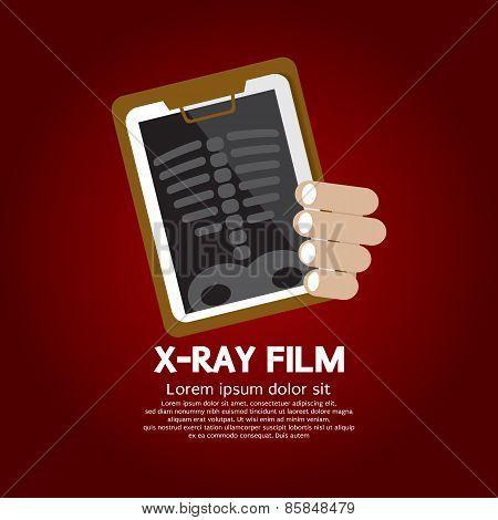 X-ray Film.