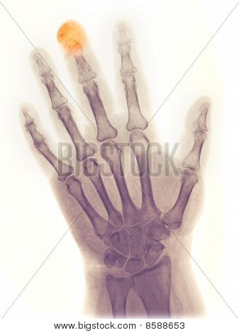 X-ray Of The Hand Of A 64 Year Old Female Who Got Her Middle Finger Crushed In A Door And Partially