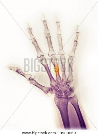 Hand X-ray Of A 25 Year Old Man Who Fractured His Middle Metacarpal When A Heavy Object Fell On His