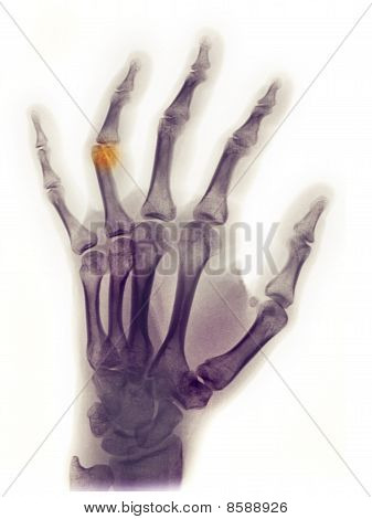 Hand X-ray Of A 23 Year Old Female Showing A Fracture Of The Distal End Of The Proximal Phalanx Of T