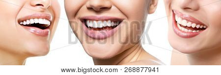 poster of Beautiful wide smile of young fresh women with great healthy white teeth, isolated over white backgr