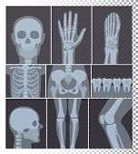 Vector Illustration Of Realistic X-rays Shots Collection. X-ray Pictures Of Head, Bones, Teeth Set,  poster