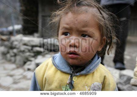 Dirty Nepali Child