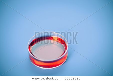 petri dishes , pathogens test