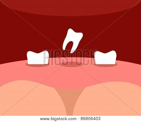 teeth falls
