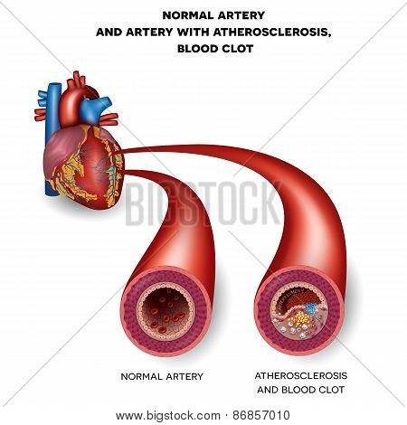 Normal Artery And Unhealthy Artery