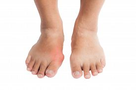 stock photo of gout  - Pair of feet with deformed right toe due to painful gout inflammation - JPG