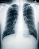 stock photo of tuberculosis  - An x-ray of a healthy male chest and lungs (identity numbers and dates have the obfuscated)