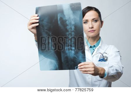 Female Radiologist Checking X-ray Image
