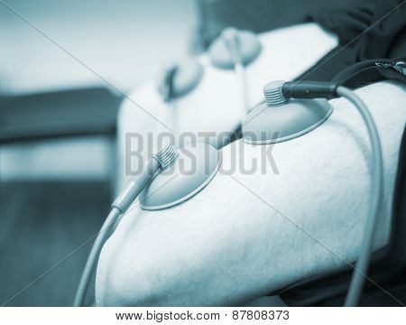 Electro Stimulation Muscle Injury Strain Pain Treatment