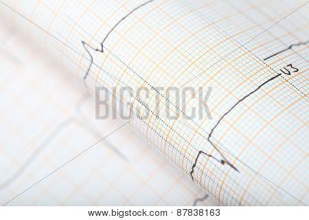 Diagnostic Ecg Chart Concept