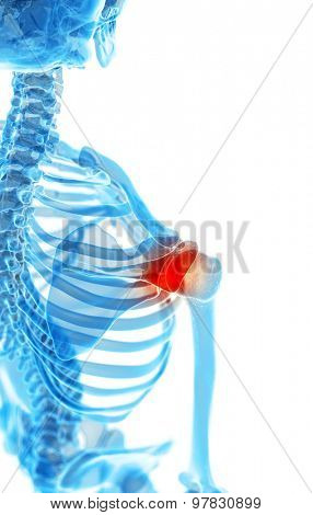 medically accurate illustration - painful shoulder