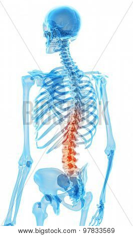 medically accurate illustration - painful back