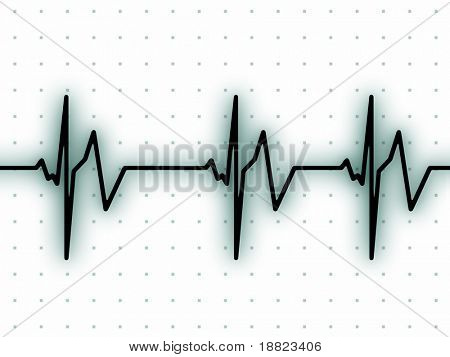 ECG heart beat graph