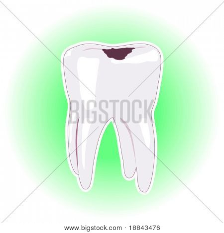 Tooth with cavity or dental filling illustration isolated on white green background
