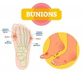 Bunions Vector Illustration. Labeled Feet Bone Disorder Explanation Scheme. Painful Toe Joint Condit poster