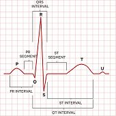 Human Heart Normal Sinus Rhythm