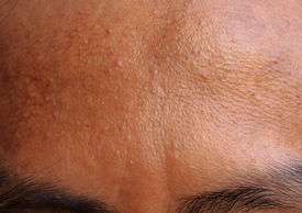 stock photo of papule  - acne forehead  - JPG