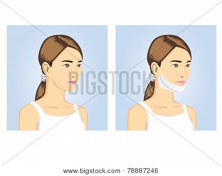Beauty Women with v-shape mask