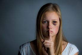 picture of bruises  - Pretty teenage girl with bruising holding finger to mouth - JPG