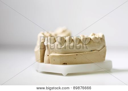 object for dental reconstruction, isolated on table