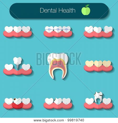 Dental Care Flat Design Vector Illustration Of Heathy Theeth, Caries, Braces System, Implantation, A