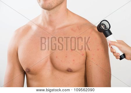 Doctor Checking Acne Skin Of Man