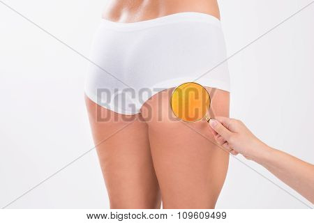 Therapist Analyzing Fats On Woman's Buttock