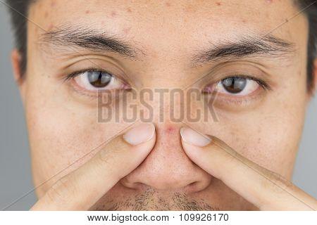 Pimple On Man Nose, Close Up