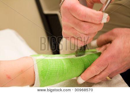 Child having fiberglass cast removed