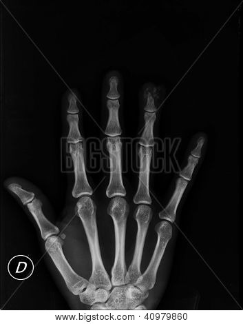 Hand at Xray