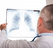 stock photo of bronchus  - Portrait of a doctor looking at a radiography - JPG