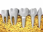 pic of molar  - molars and implant in the jaw bone 3d render - JPG