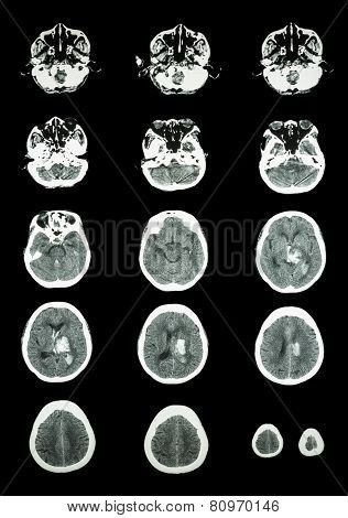 Hemorrhagic Stroke .  Ct Scan (computed Tomography) Of Brain ( Cerebrovascular System )