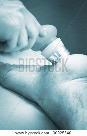Musclefoot Injury Strain Pain Physiotherapy Treatment