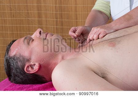 Acupuncturist Prepares To Tap Needle On Man's Torso
