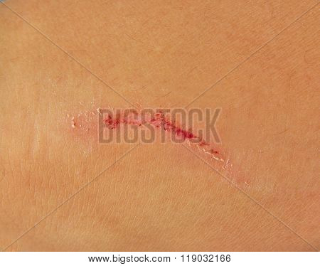Scratch on human skin in white background