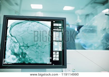 Monitoring Of Cerebral Vessels During Surgery