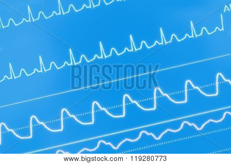 Ecg Waves On The Screen