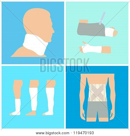 Medical collage with views of fractures and overlay gypsum. Vector illustration