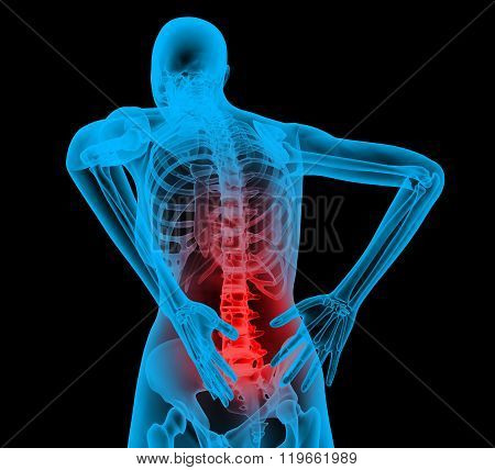 Human backbone in x-ray view, Back Pain, Backache