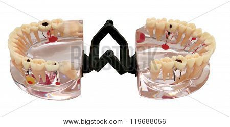 Orthodontic Teeth Model