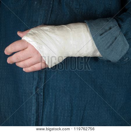 Fractured Hand In A Gypsum Plaster