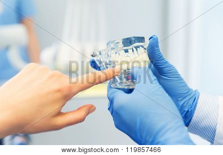 people, medicine, stomatology and health care concept - close up of dentist hand and patient pointing finger to jaw or teeth layout at dental clinic office