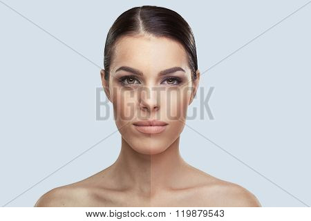 Woman Face Before And After Beauty Treatment