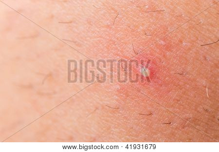 ingrown hair closeup