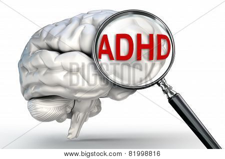 Adhd Word On Magnifying Glass And Human Brain