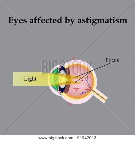 Impaired vision with astigmatism. As astigmatism affect vision