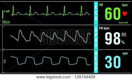Patient monitor displays vital signs ECG electrocardiogram EKG, oxygen saturation SPO2 and respiration. Medical examination vector illustration.
